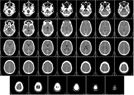 Kopf im CT
